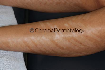 Laser Hair Removal Chroma Dermatology