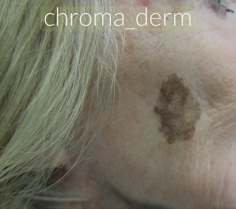 melanoma-chromaderm