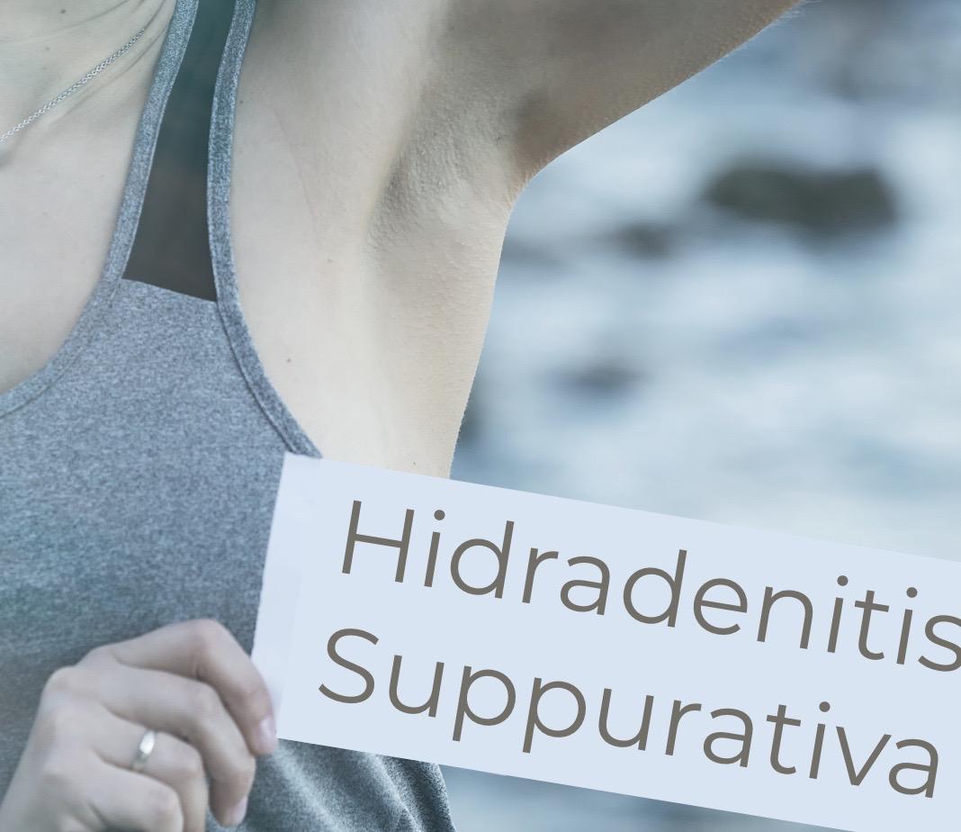 hidradenitis-suppurativa-boils-chromaderm