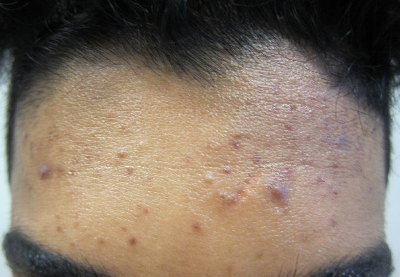 dermatologist melbourne acne